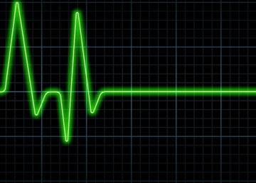 EKG w Apple Watch wykrywa objawy niedokrwienia wieńcowego, które przeoczyły szpitalne EKG